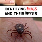Identifying Bugs and Their Bites